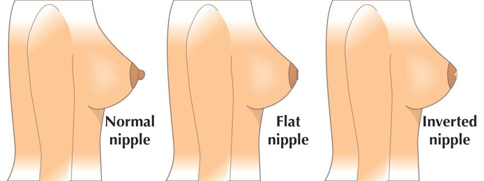 Treatment of inverted nipples in frankfurt